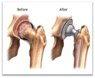 Joint Replacement | Mississippi Valley Surgery Center
